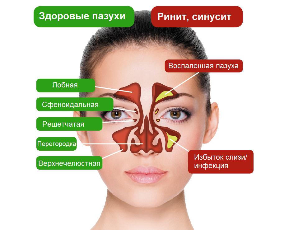 Лечение острого синусита домашних условиях